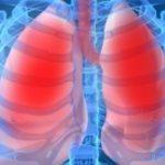 problemas-respiratórios