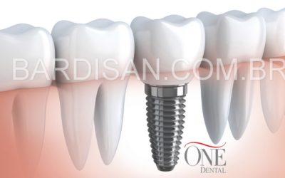 Plano odontológico com implante dentário da Amil : One Dental Health
