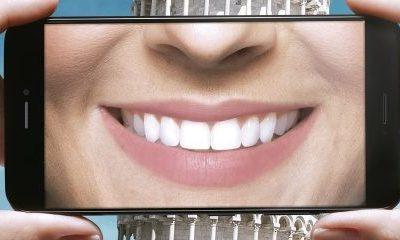 Plano odontológico que cobre prótese a partir de 99,00/mês da Amil