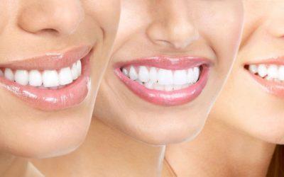 Plano Odontológico Completo por R$ 115/mês e R$ 147,00/mês