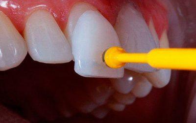 Amil Dental cobre Faceta por 45,08/mês e carência de apenas 24hrs