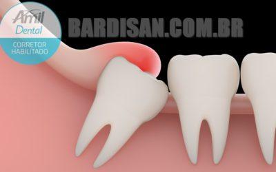 Amil Dental cobre extração de siso sem carência no cartão de crédito ou boleto à vista