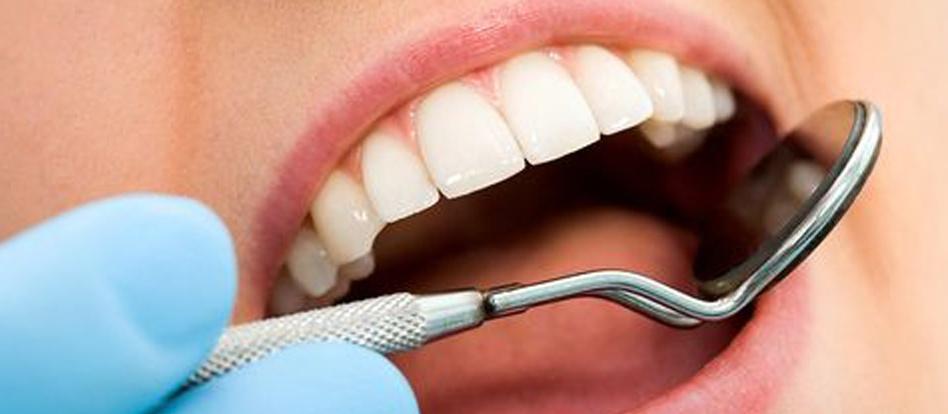 A importância de contratar plano dental antes do implante