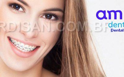 Dental E40, Manutenção Ortodôntica Completa com Clareamento !